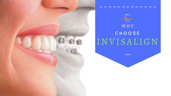 choose invisalign