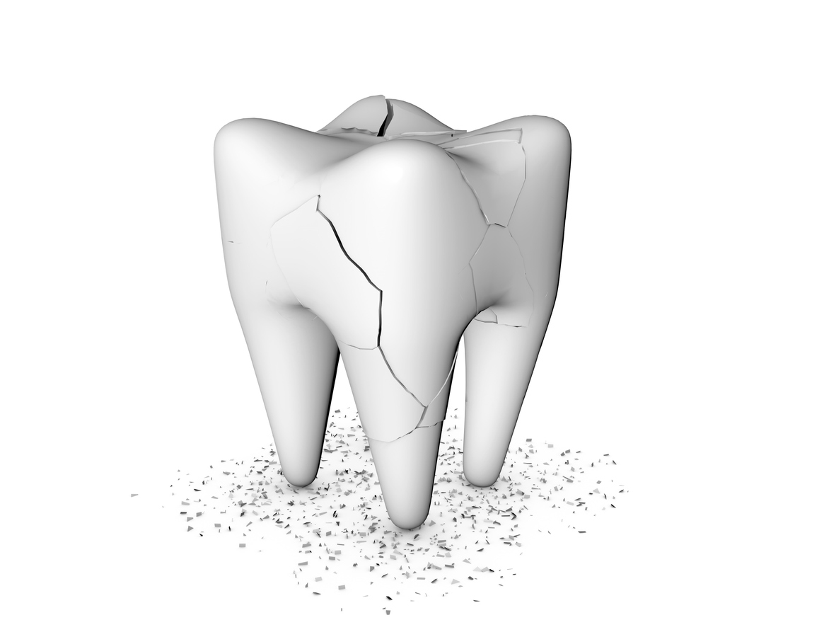 Top causes of tooth damage