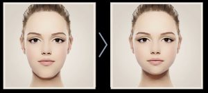 Image showing before and after Facial Trauma treatment