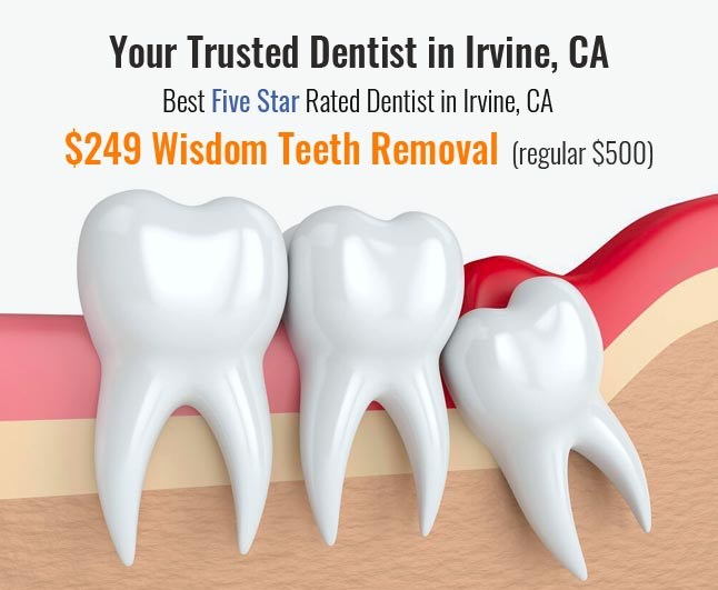 Image showing Wisdom teeth removal discounted price