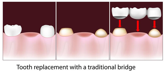 Graphical image explaining Tooth replacement with a traditional bridge