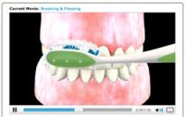 dental_video_button