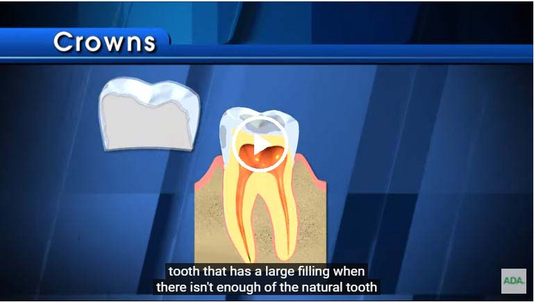 A video on crowns - click to see