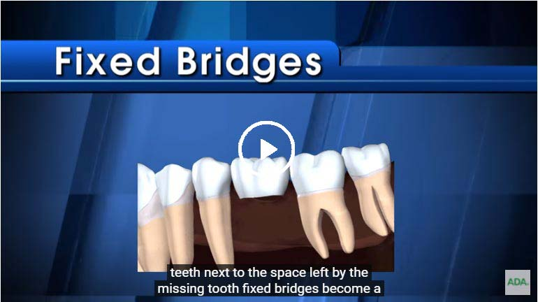 A video on Fixed bridges - click to see