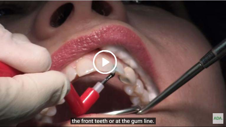 A video on composite dental fillings - click to see